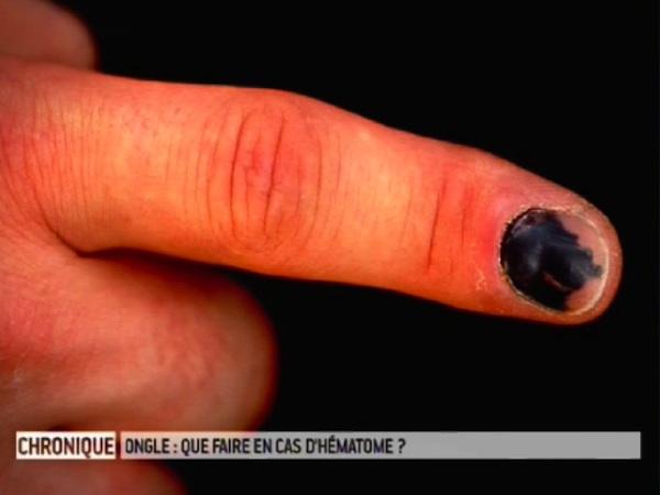 comment faire tomber un ongle - Le comment faire